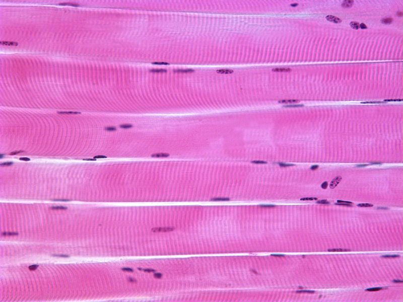 Skeletal Muscle histology