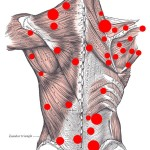 back muscle pain , 8 Muscle Pain In Back In Muscles Category