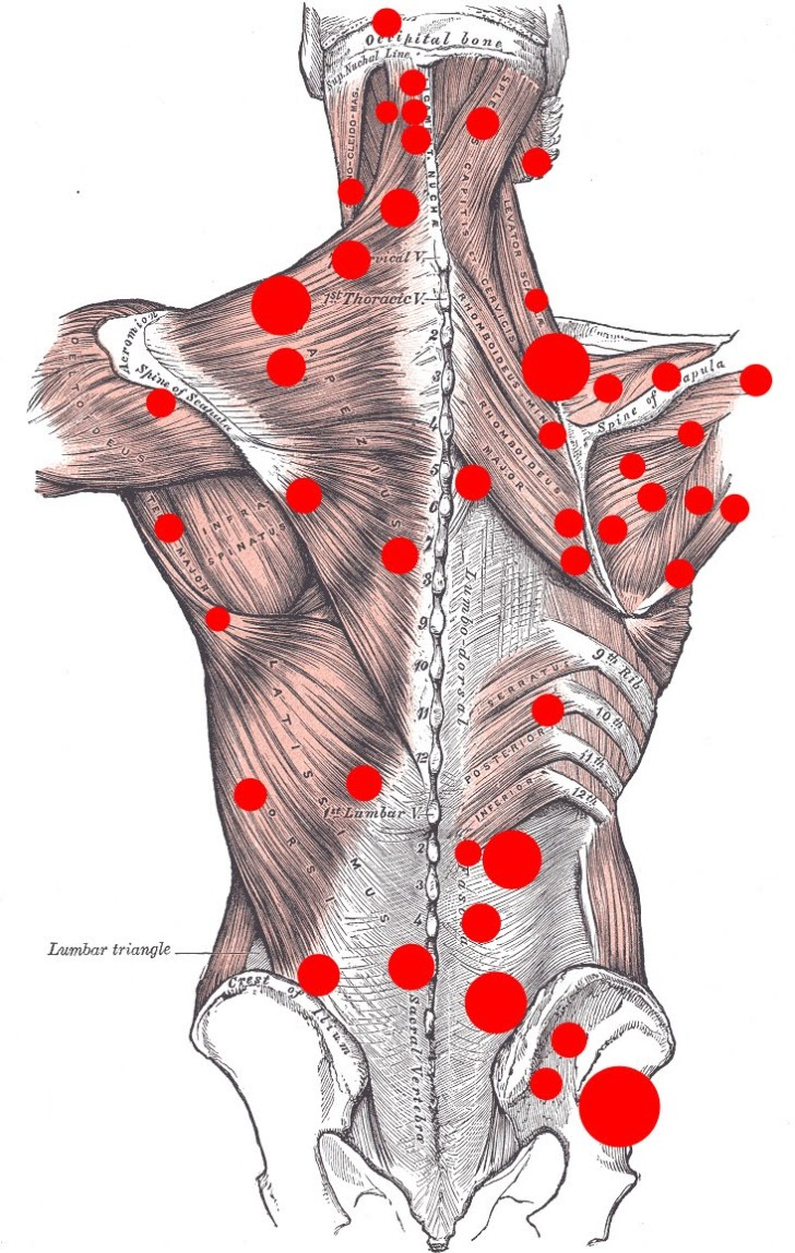 Muscles , 8 Muscle Pain In Back : Back Muscle Pain
