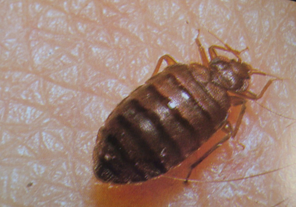 bed bug picture 2