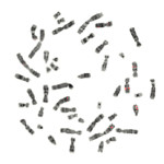 chromosomes , 5 Animal Cell Chromosomes Images In Cell Category