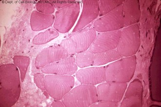 muscle tissue slide in Birds