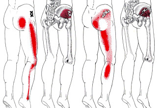 Psoas Muscle Low Back Pain , 7 Psoas Muscle Back Pain In Muscles Category