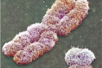 the chromosomes cell in Brain