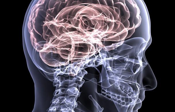 Brain , 5 Phineas Gage Accident Brain Injury Pictures : Brain Injury Awareness