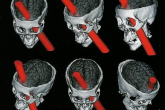 PhineasGage , 5 Phineas Gage Accident Brain Injury Pictures In Brain Category