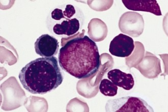 Two Hypogranular Neutrophils , 8 Neutrophils Pictures In Cell Category