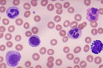 White Blood Cell Differential Count , 8 White Blood Cells Pictures In Cell Category