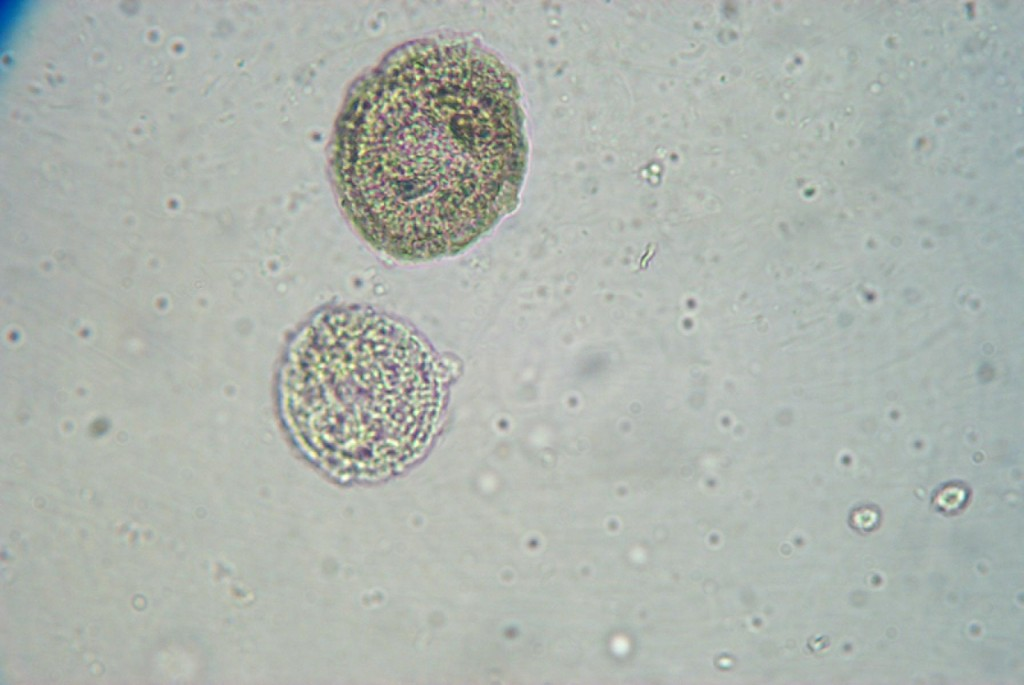 White blood cells at 400x