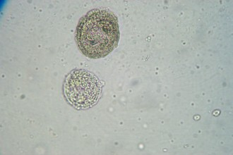 White blood cells at 400x in Dog