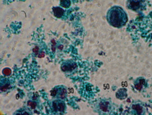 White blood cells in a stool sample