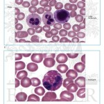 a Large Lymphocyte And An Eosinophi , 6 Pictures Of Two Types Lymphocytes In Cell Category