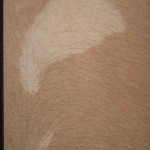 ash leaf macules tuberous sclerosis , 6 Ash Leaf Macules Pictures In Organ Category