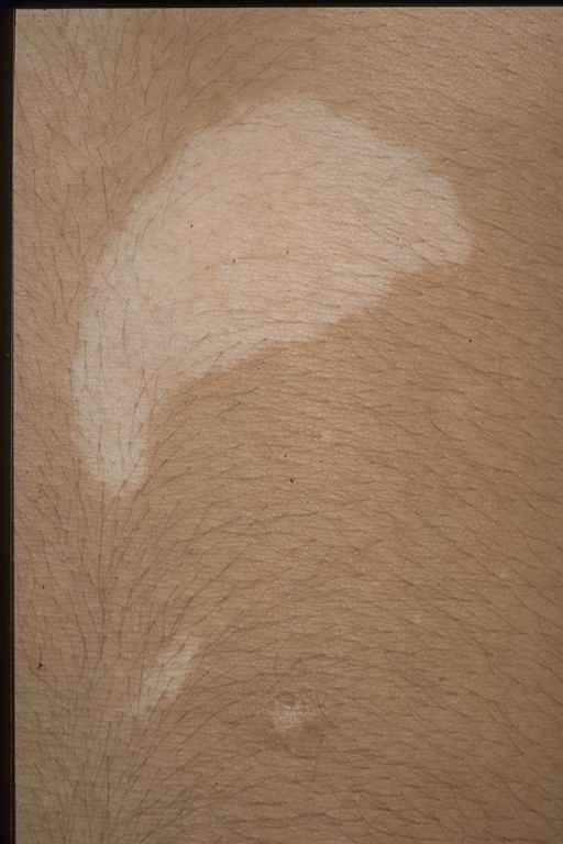 Organ , 6 Ash Leaf Macules Pictures : Ash Leaf Macules Tuberous Sclerosis