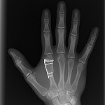 broken bone x ray pictures , 6 Broken Bone X Ray Pictures In Skeleton Category