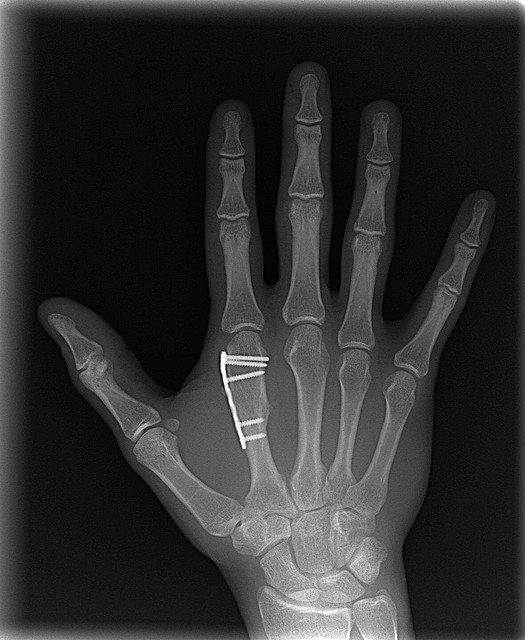 broken bone x ray pictures