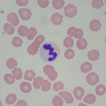 healthy white blood cells , 8 White Blood Cells In Urine Pictures In Cell Category
