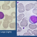 lymphocytes , 6 Pictures Of Two Types Lymphocytes In Cell Category