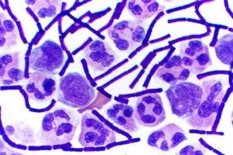 Other Cells Are White Blood Cells , 5 Pictures Of White Blood Cells In Spinal Fluid In Cell Category