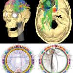phineas gage s connectome , 5 Phineas Gage Accident Brain Injury Pictures In Brain Category