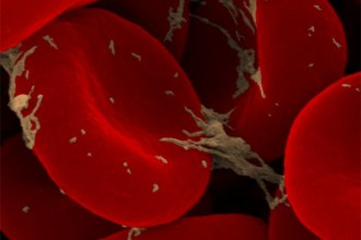 Red Blood Cells Definition , 7 Pictures Of Red Blood Cells In Cell Category