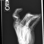 x-ray pictures of a broken collarbone , 6 Broken Bone X Ray Pictures In Skeleton Category