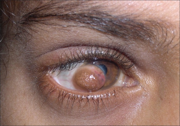 Cat , 5 Fabulous Cat Eye Syndrome Pictures : Goldenhar Syndrome