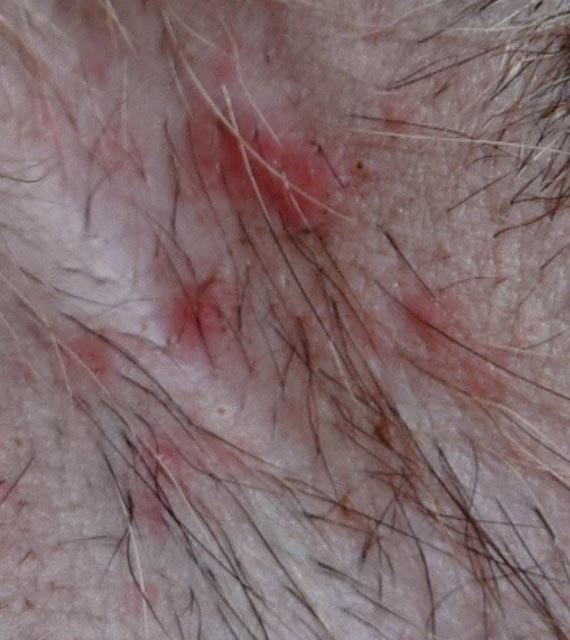 Dog , 6 Hottest Pictures Of Flea Bites On Dogs : Dog Fleas