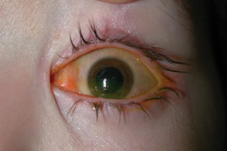 Eye Infection , 5 Fabulous Cat Eye Syndrome Pictures In Cat Category