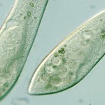 Paramecium caudatum intact cells , 8 Paramecium Images In Cell Category
